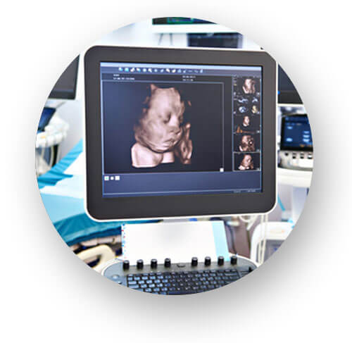 3D/4D-Ultraschall in der PRÄNATALPRAXIS LEIPZIG Dr. med. Simone Glasow